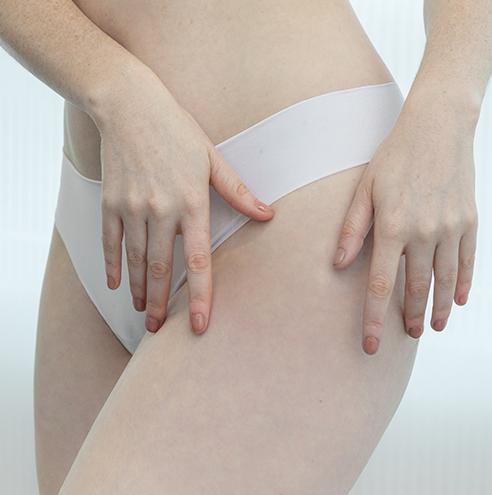 Gluteoplastia con o sin implantes